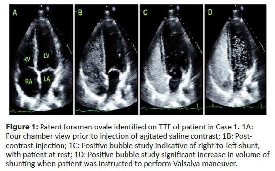 interventional-cardiology-foramen