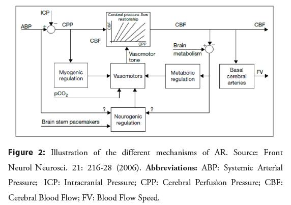 interventional-cardiology-mechanisms