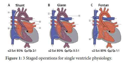 Interventional-Cardiology-physiology