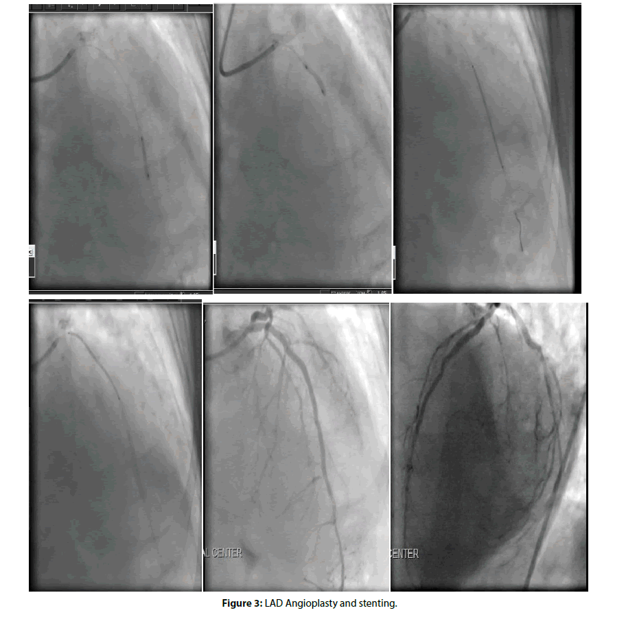 Interventional-Cardiology-stenting-angioplasty