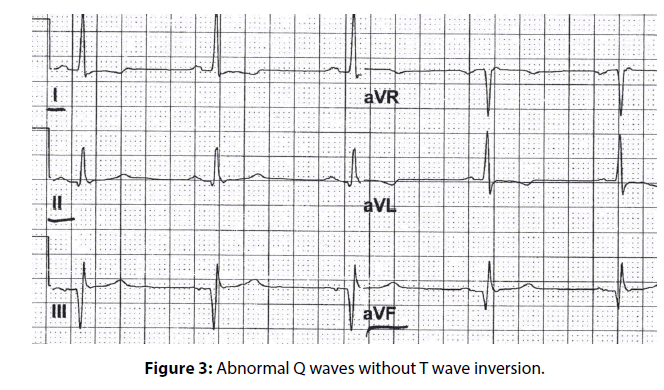 clinical-investigation-Abnormal-waves