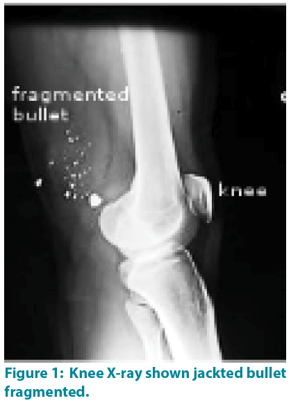 clinical-practice-Knee-X-ray