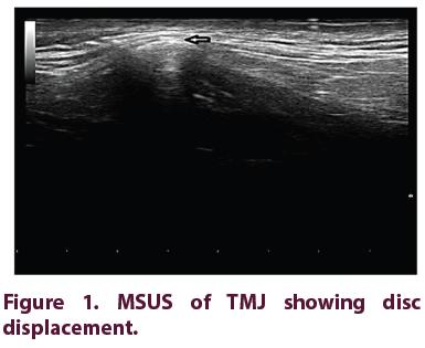 clinical-rheumatology-MSUS-TMJ
