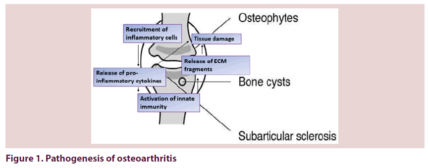 clinical-rheumatology-Pathogenesis-osteoarthritis