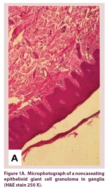clinical-rheumatology-cell-granuloma
