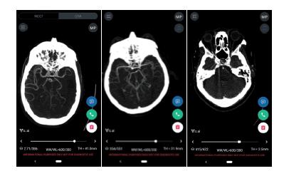 experimental-stroke-translational-medicine-presenting