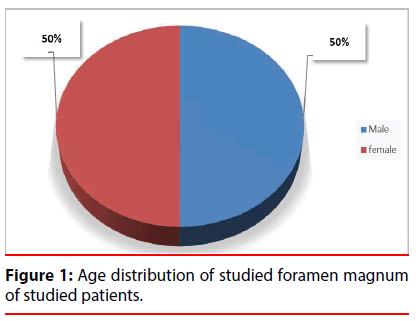 ijocs-Age-distribution