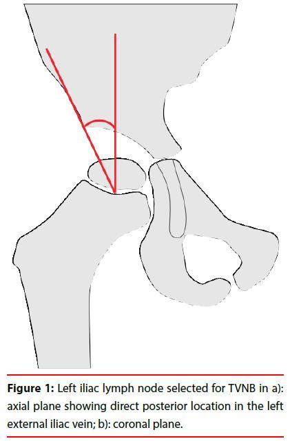 ijocs-lymph-node