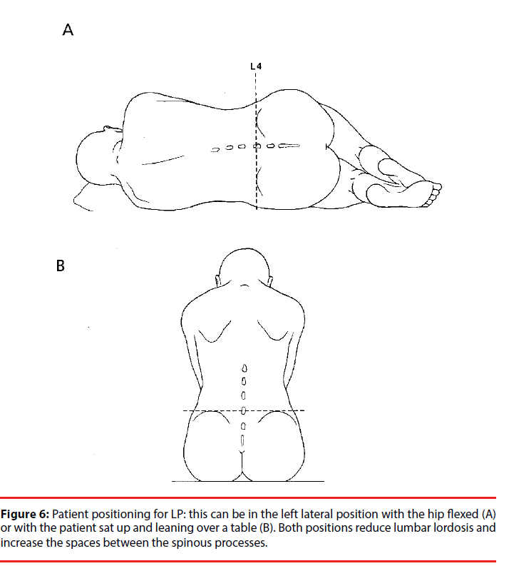 How To Safely Perform Lumbar Punctures In Adult Patients