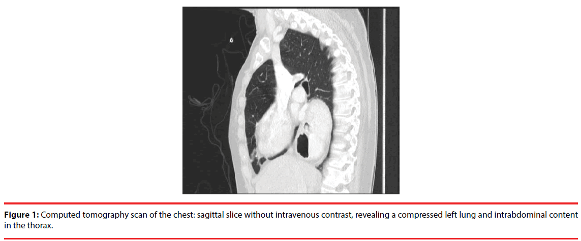 An uncommon etiology of nausea and vomiting: paraesophageal