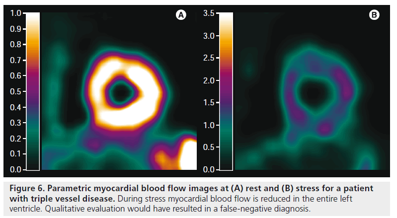 imaging-in-medicine-During-stress