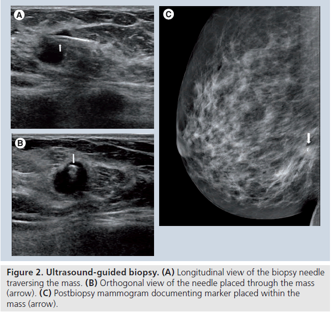 Tissues breast calcification in