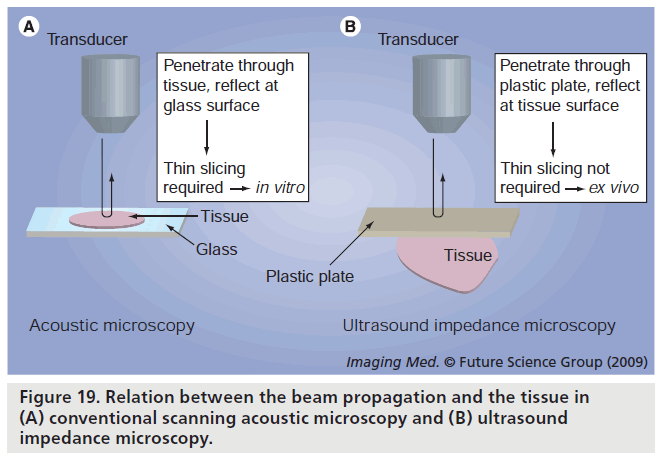 imaging-in-medicine-acoustic-microscopy