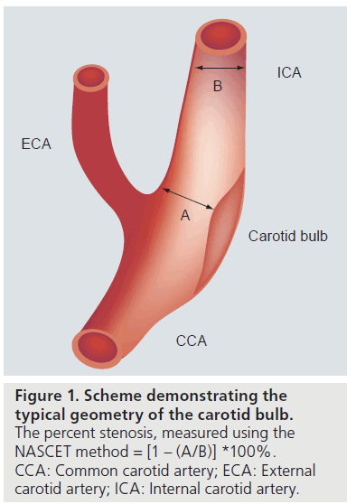 Attractive Carotid Bulb Crest - Anatomy And Physiology Biology ...
