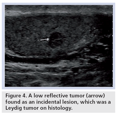 imaging-in-medicine-reflective-tumor