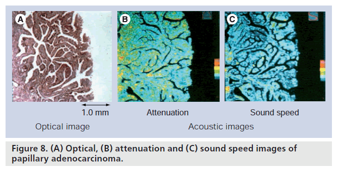 imaging-in-medicine-sound-speed