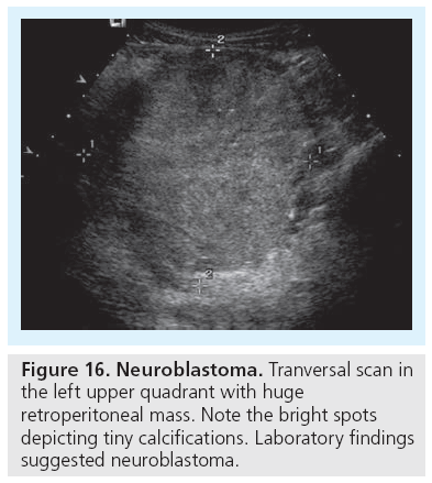 Role and potential of modern ultrasound in pediatric abdominal imaging