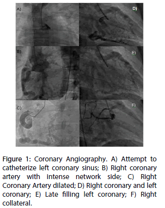 interventional-cardiology-Coronary-Angiography