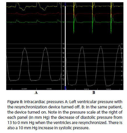 interventional-cardiology-Intracardiac-pressures