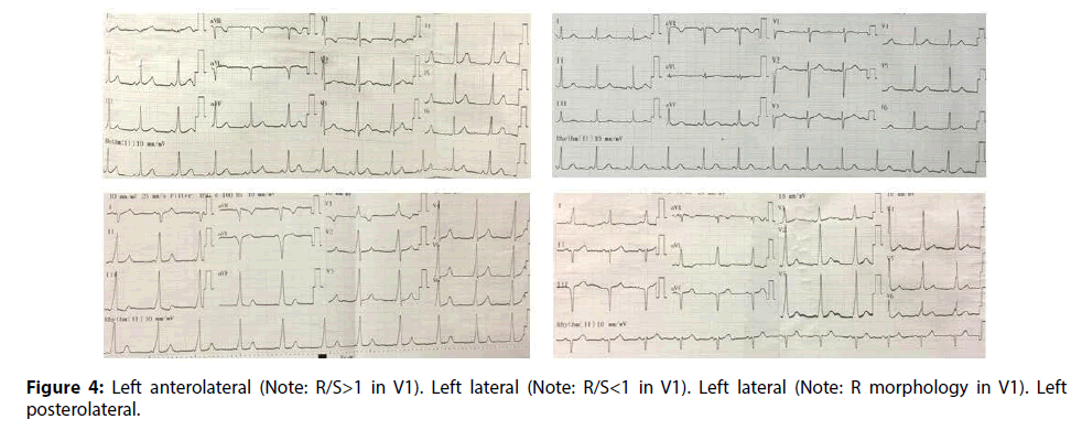 interventional-cardiology-Left-anterolateral