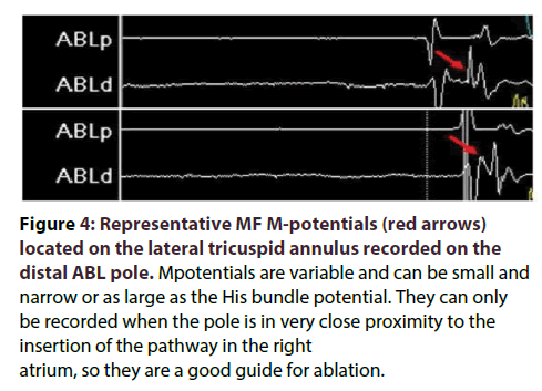 interventional-cardiology-Representative-MF