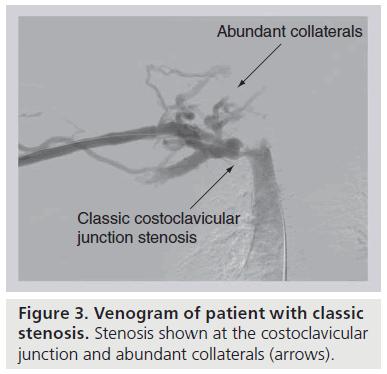 interventional-cardiology-Venogram