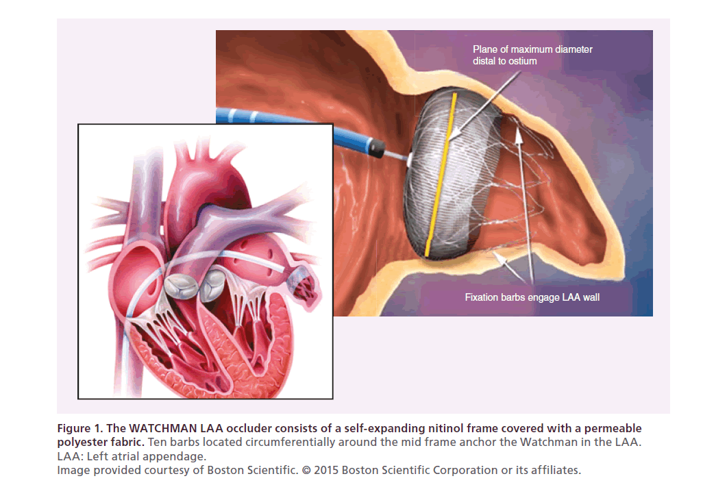 percutaneous left atrial appendage closure: a review of the, Human Body