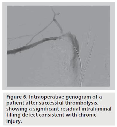 contemporary management of axillosubclavian vein thrombosis, Cephalic Vein